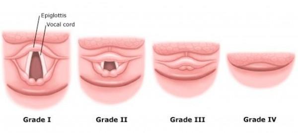 laryngoscopy. c-l laryngoscopy